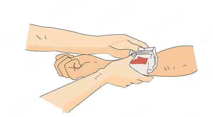图中所示的加压包扎止血法可用于治疗伤员哪个部位的出血?